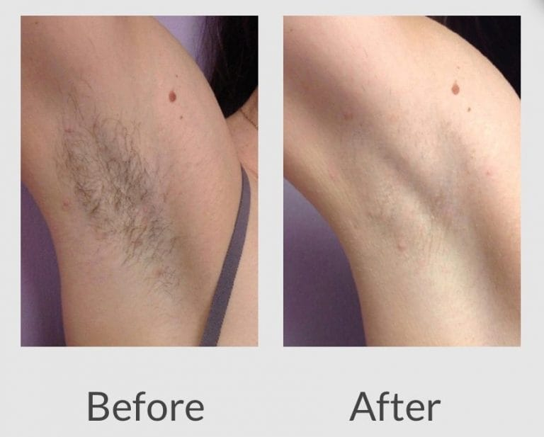 Laser Hair Removal Before And After Us Hair Removal